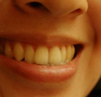 Uśmiechnięta kobieta pokazująca zęby
