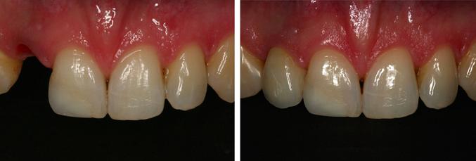 Implant zębowy przed i po zabiegu